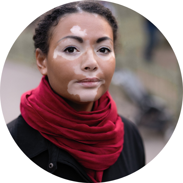 Dark haired woman with vitiligo on her face.