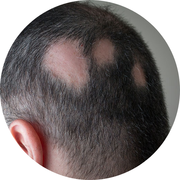 Head with missing patches of hair from alopecia areata.