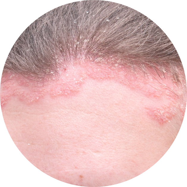 Skin at the hairline with scalp psoriasis.